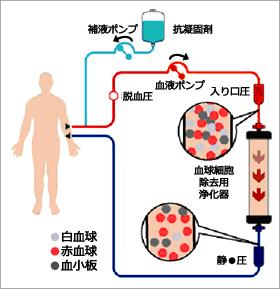 白血球除去療法(LCAP)