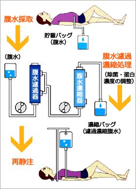 腹水濾過濃縮再静注法(CART)