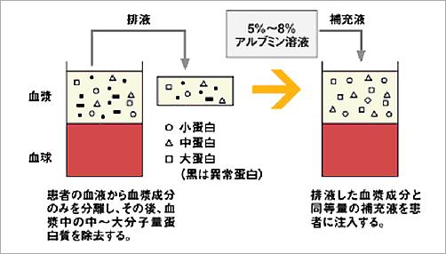 二重濾過血漿交換療法(DFPP)