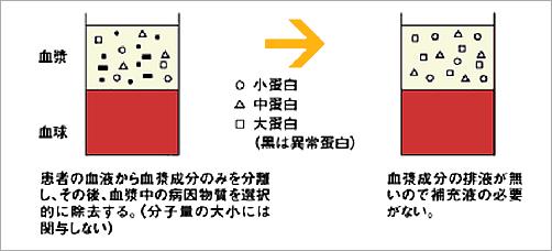血漿吸着法(PA)